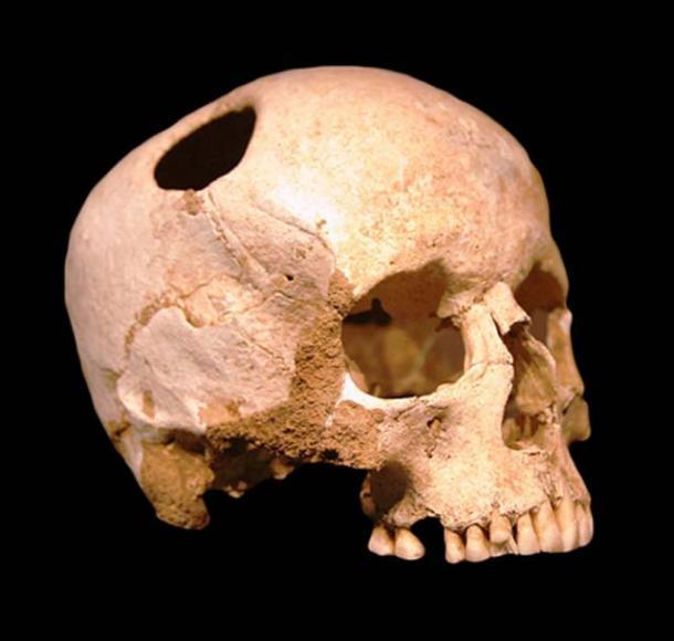 Череп девушки, выжившей после трепанации, сделанной кремневым резцом. Эпоха неолита (3500 г. до н.э.). Музей естествознания в Лозанне